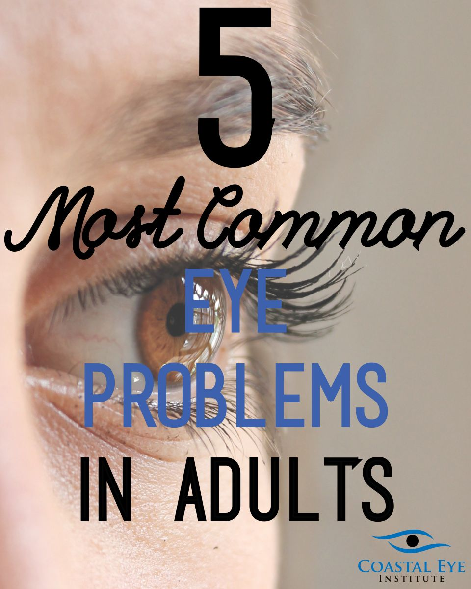 5 Most common eye problems in adults image