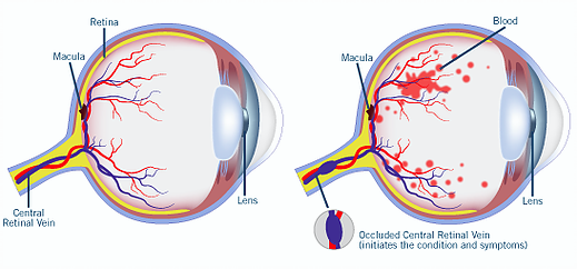 Structure of the eye image