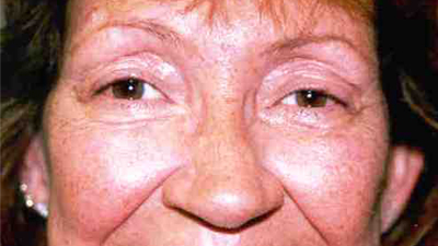Adult after eye muscle surgery image