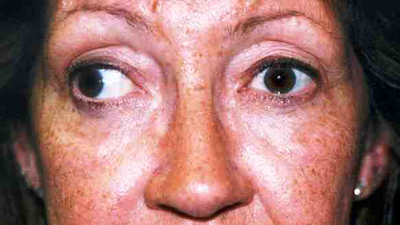 Adult before eye muscle surgery