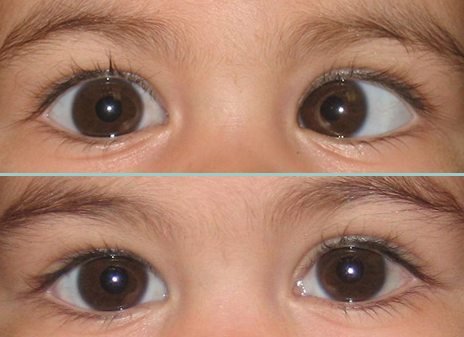 Before and after eye muscle surgery image