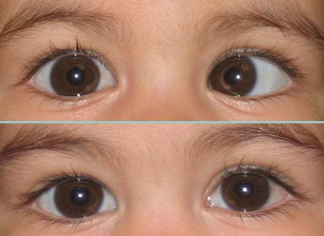 Before and After Eye Muscle Surgery Photos | Sarasota, Bradenton, Florida