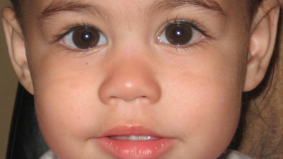 Child after eye muscle surgery
