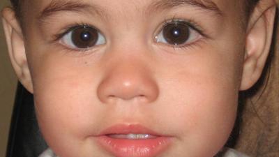 Before And After Eye Muscle Surgery Photos Sarasota Bradenton