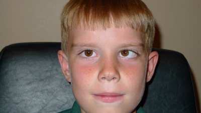 Child before eye muscle surgery