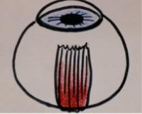 Eye muscle surgery illustration