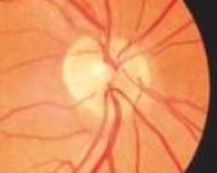 normal eye disc image