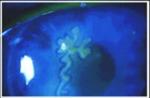 Herpes simplex image