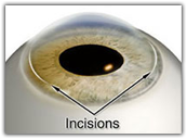 Illustration of where incisions are made for advanced lens implants image