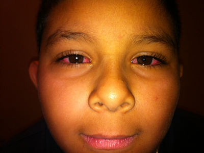 Child with pink eye image