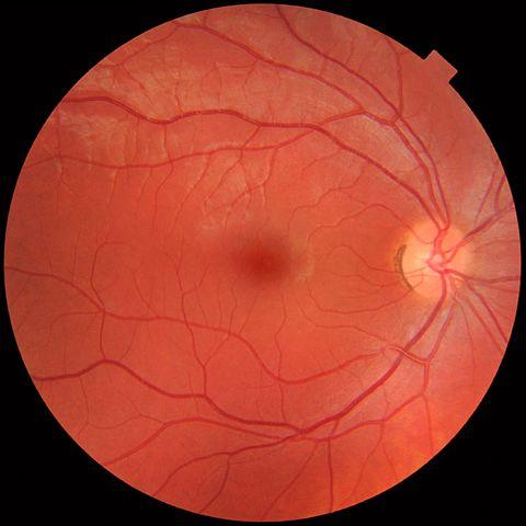 Normal eye image